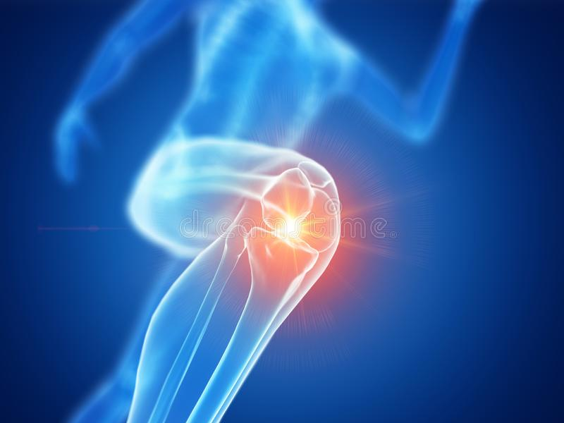 慢跑者痛苦的膝盖 库存例证