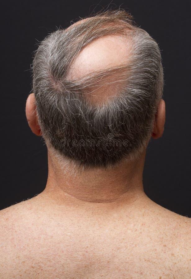 成为秃头的人的题头 免版税库存照片