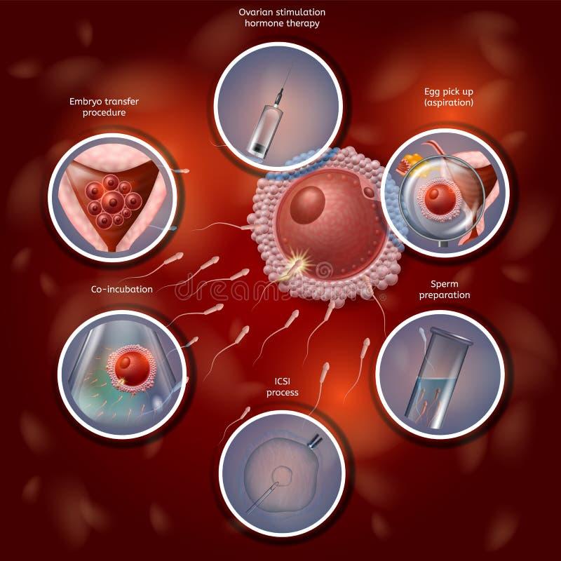 手动地结合鸡蛋和精液在实验室盘的IVF 皇族释放例证