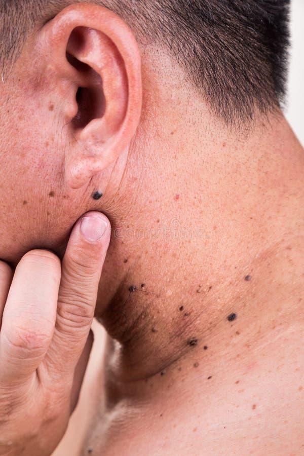 手指在亚洲男性脖子和肩膀的容忍痣  免版税库存照片
