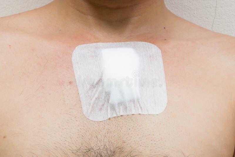 从手术的创伤在胸口 免版税图库摄影