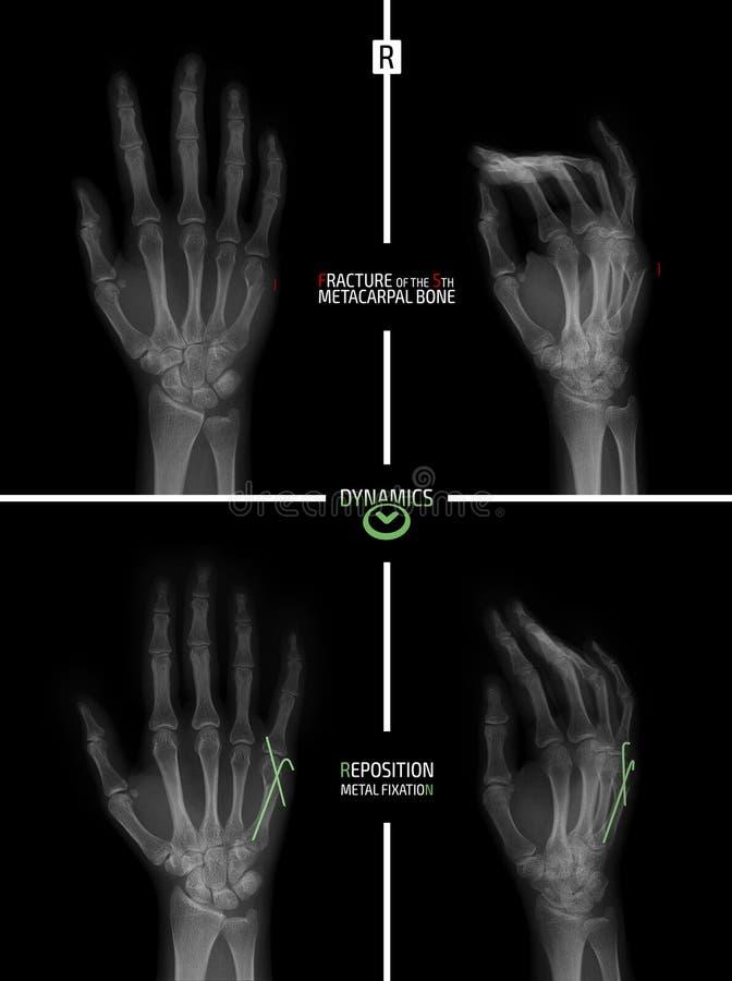 手的X-射线 5rd掌骨的破裂 改变位置 骨缝术 标记 库存例证