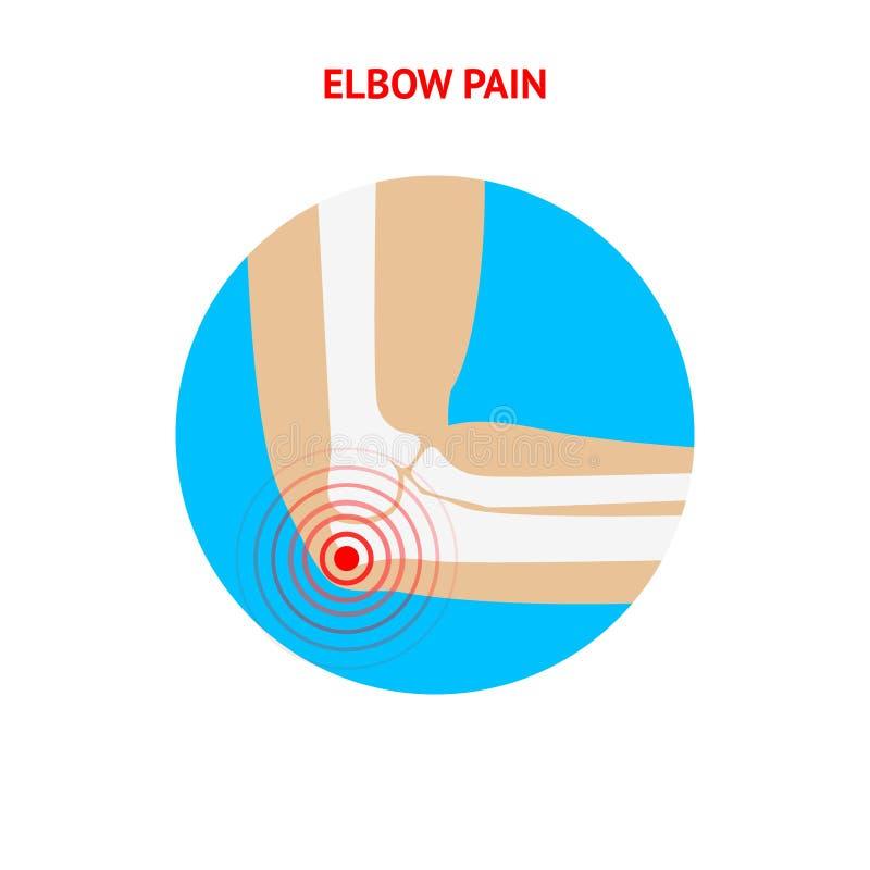 手肘痛苦 手肘在白色背景的痛苦象 向量例证