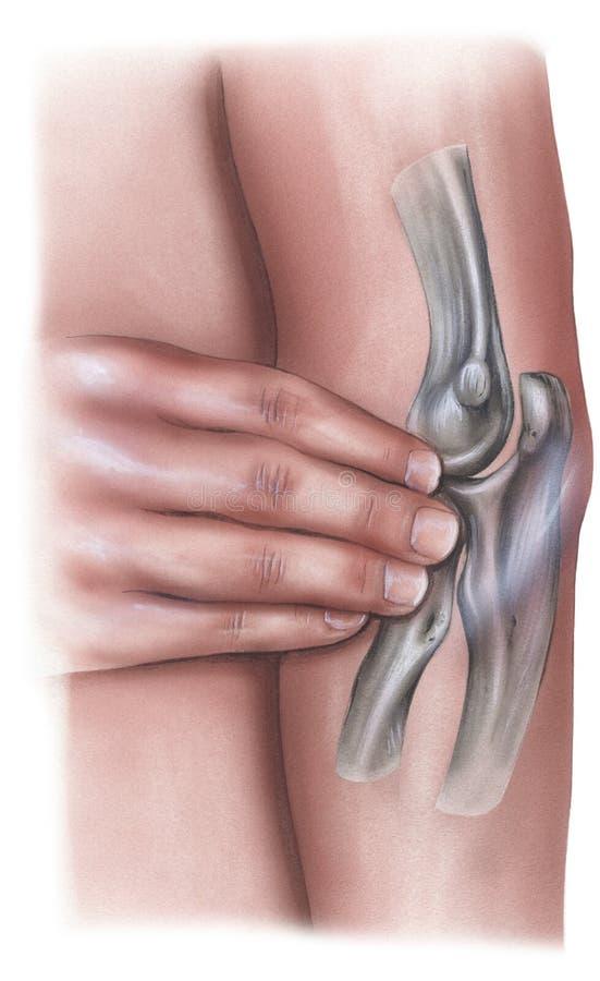 手肘-镇痛的手压力 向量例证