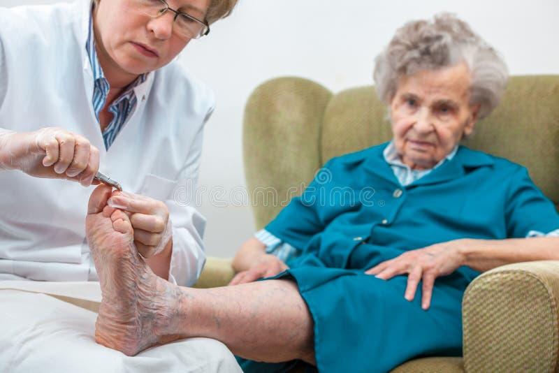手足病的治疗 库存图片
