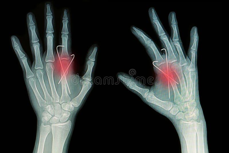 手破裂影片X-射线  免版税库存图片