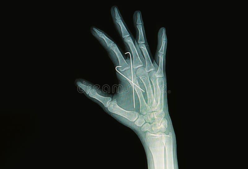 手破裂影片X-射线  库存图片
