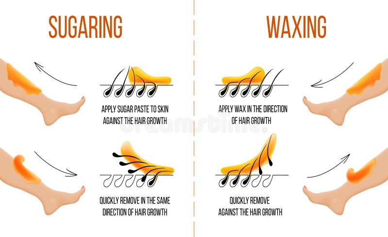 打蜡和加糖 头发撤除 光滑的清楚的皮肤 头发的Epilation和去壳 库存例证