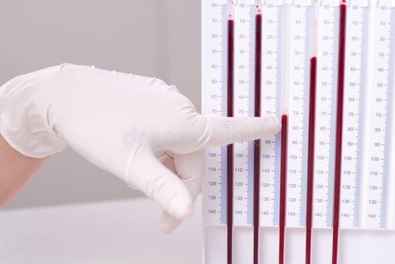 执行esr测试妇女的医生 免版税库存图片