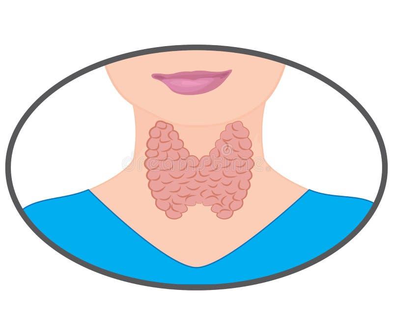扩大的甲状腺 在白色背景的内分泌官能不良传染媒介例证 向量例证