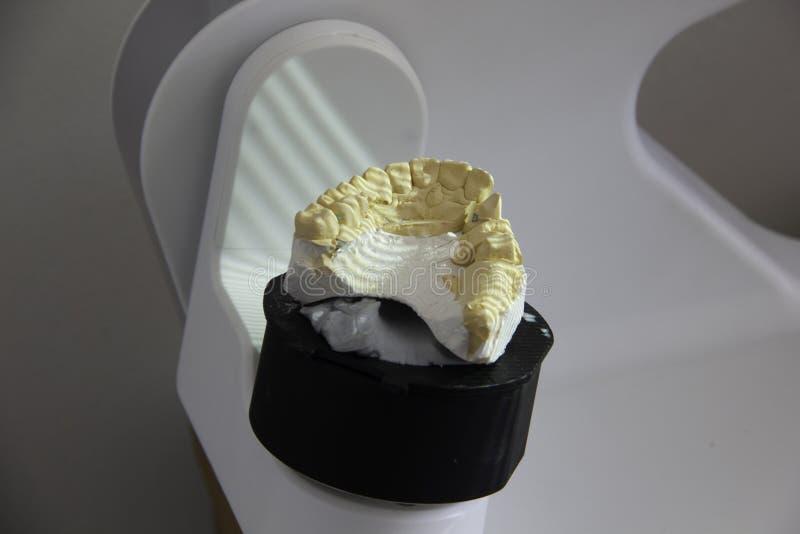 扫描在3D扫描器的塑象假牙制造  免版税图库摄影