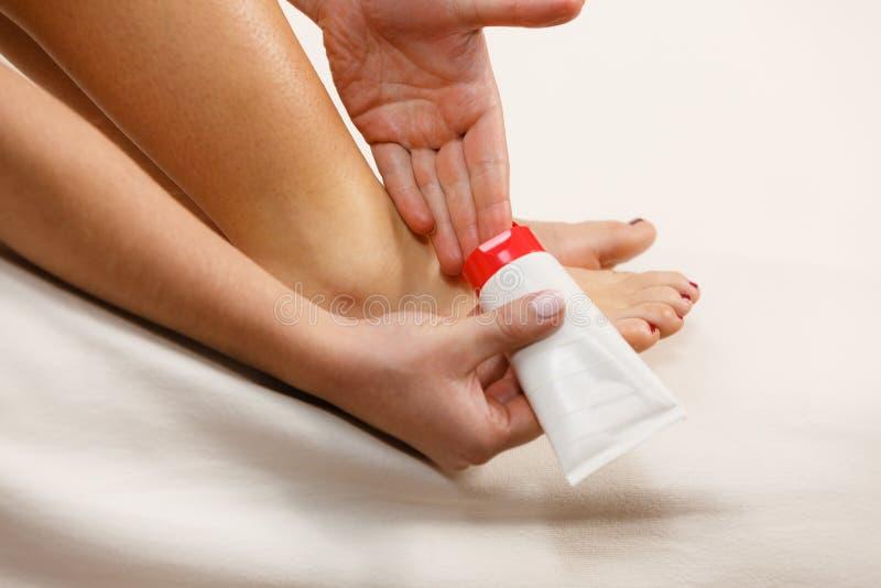把软膏放的妇女在应用奶油的坏脚腕上 免版税库存照片