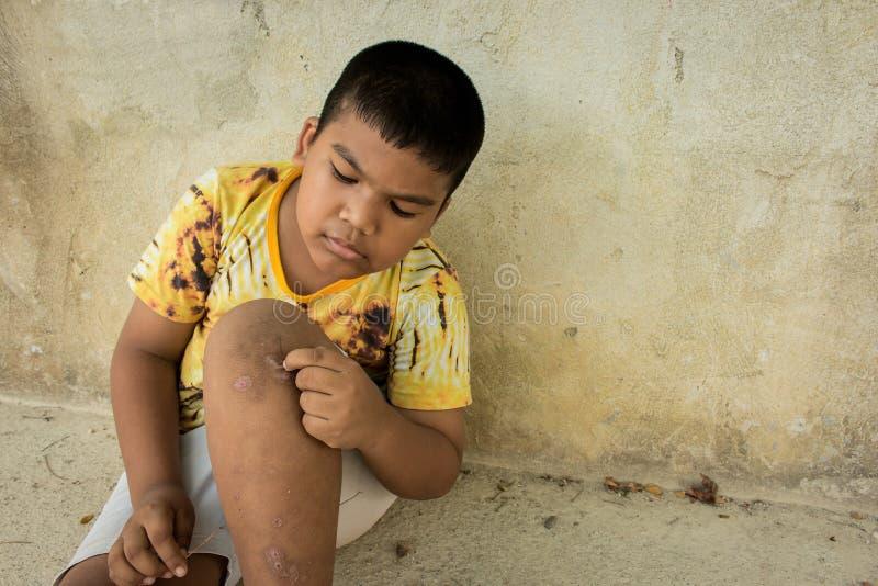 抓水泡斑点病在腿 图库摄影