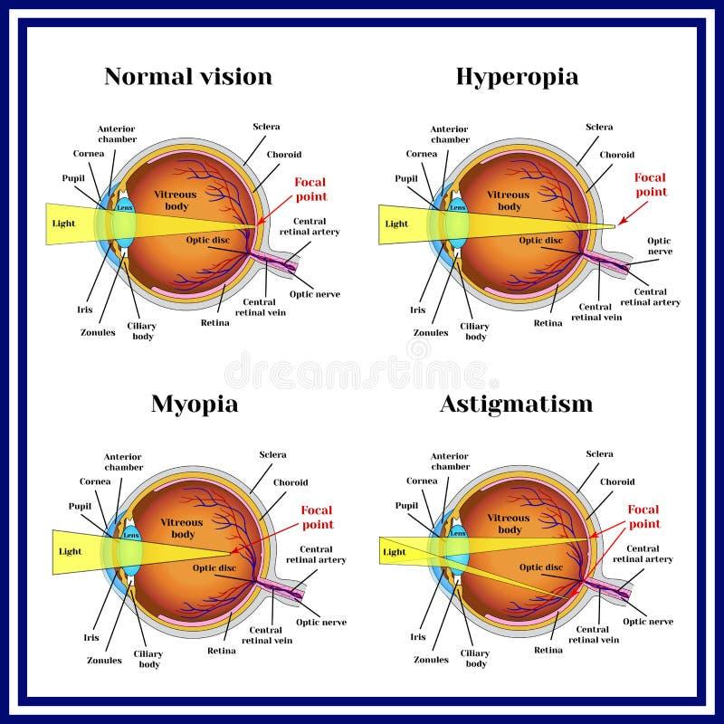 折射错误眼珠:远视,近视,散光 向量例证