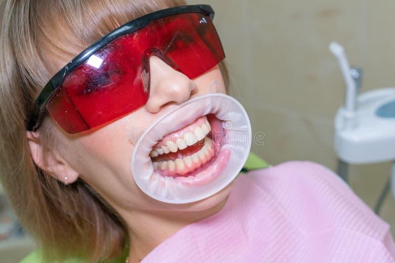 招待会牙医的,漂白牙和预防的妇女 免版税库存图片