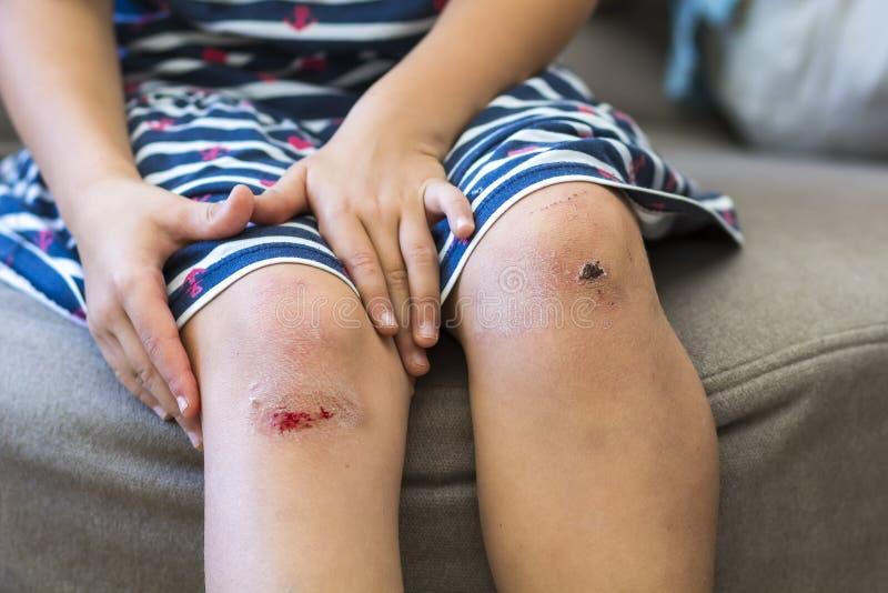 拿着她的小女孩特写镜头被挫伤的受伤的损坏的膝盖 免版税库存图片