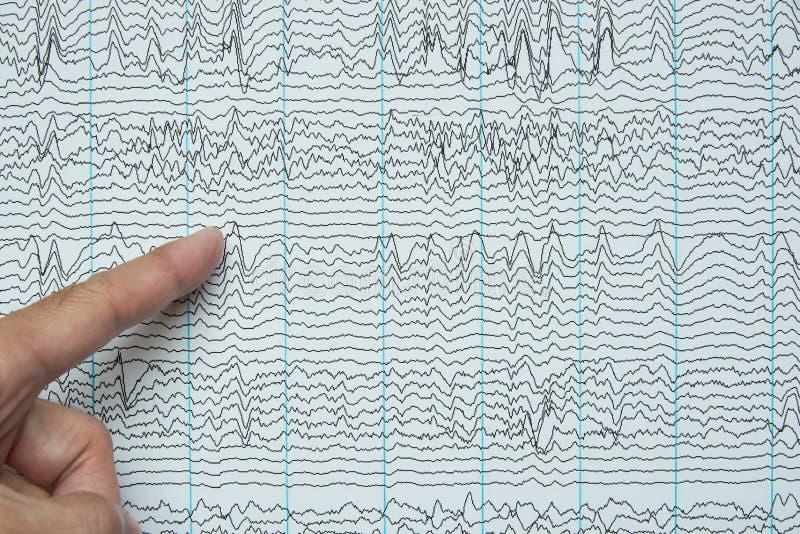 指向人的脑波记录仪录音想象  图库摄影