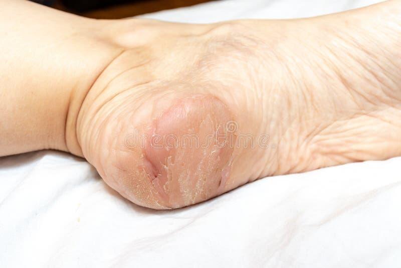 损坏,崩裂,干燥和剥在脚关闭脚跟的皮肤,皮肤病学的问题和真菌治疗 图库摄影
