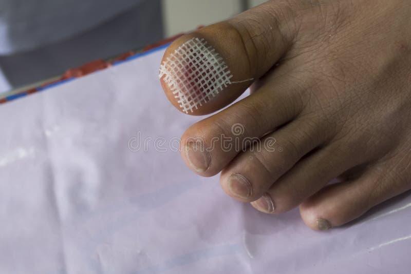 损害徒步从钉子提取 在医院清洗创伤 免版税库存照片