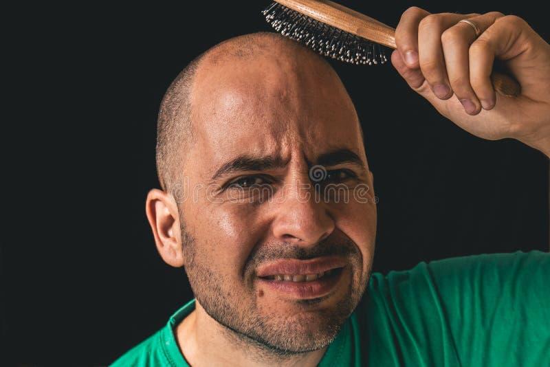 掉头发概念 使用在不存在的头发的秃头人发刷 免版税库存图片