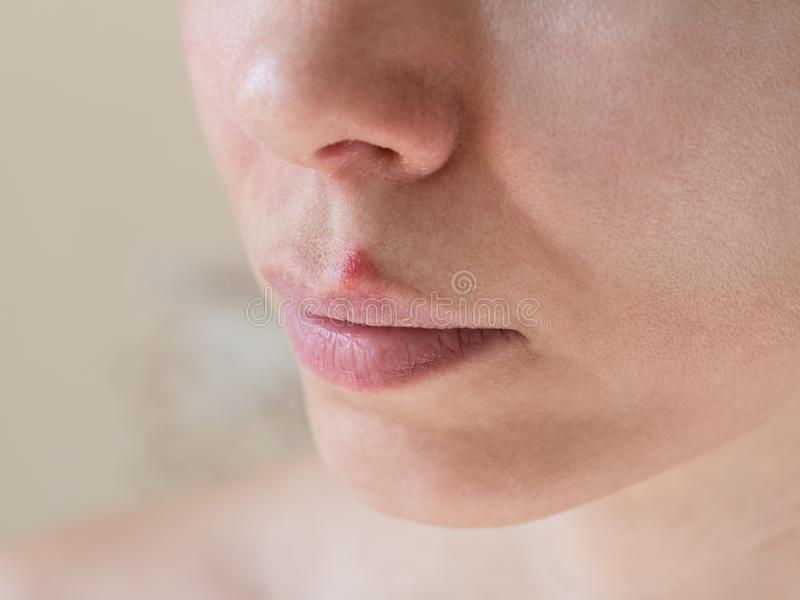 接近的冷疱疹labialis照片痛处 女性面孔的特写镜头 库存图片