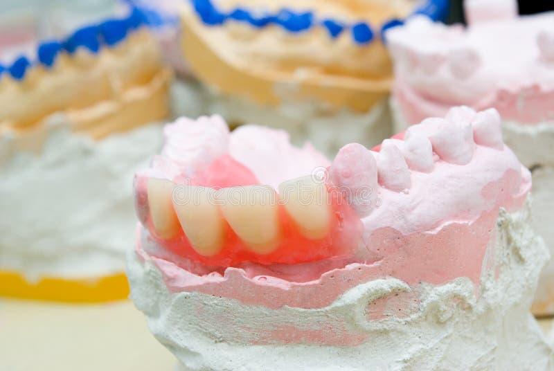 接近的设备铸造义肢牙  图库摄影