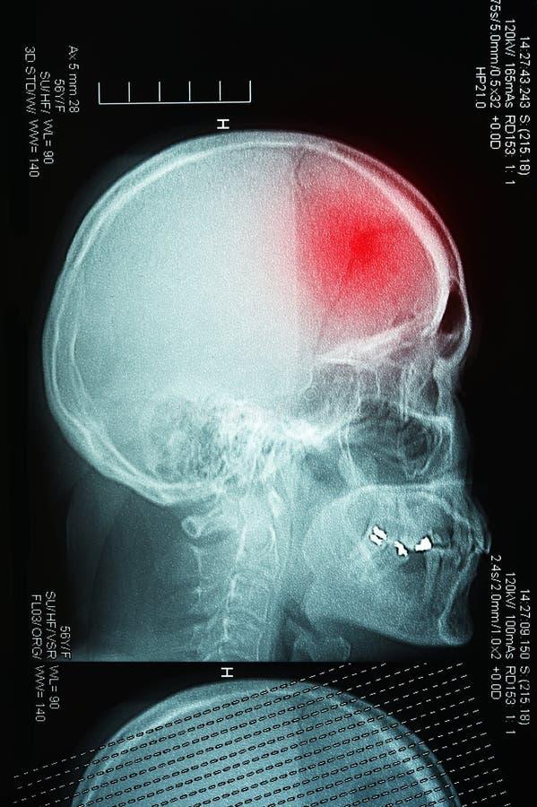描出与人的头骨x光芒的看法 免版税库存图片