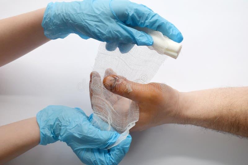 握有血淋淋的砍得恨深的伤口的医生手男性手在大手指 医生审查患者 耐心欢呼和支持 免版税库存图片