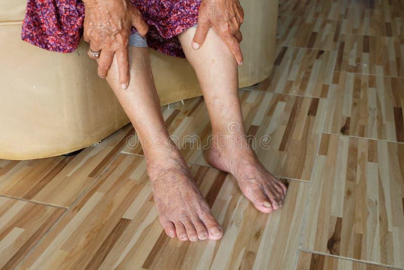 握腿的亚裔老妇人从静脉曲张的痛苦在腿 免版税图库摄影