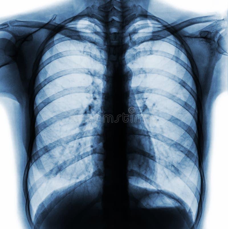 摄制胸部X光PA挺直展示正常人的胸口 免版税库存照片
