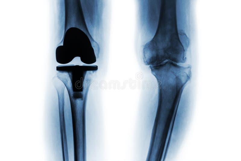 摄制骨关节炎膝盖患者X-射线和人工接缝& x28;共计膝盖替换& x29; 被隔绝的背景 免版税库存照片