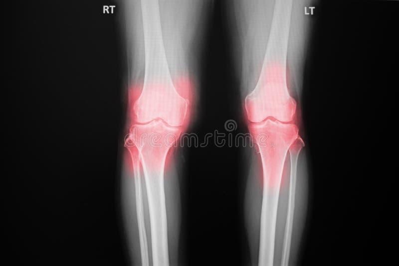 摄制骨关节炎膝盖患者X-射线膝盖和人工接缝 图库摄影