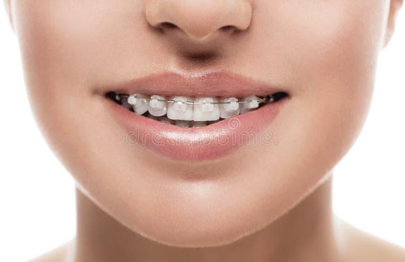 支撑牙嘴畸齿矫正术妇女 免版税库存图片
