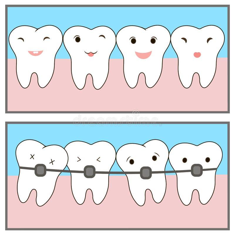 支撑象漆线应用网站的牙 拥挤牙,牙齿概念 关于正牙学治疗的漫画 illu 皇族释放例证