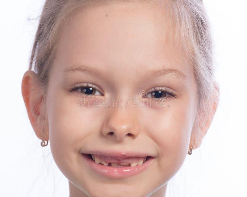 改变的牙 免版税库存照片