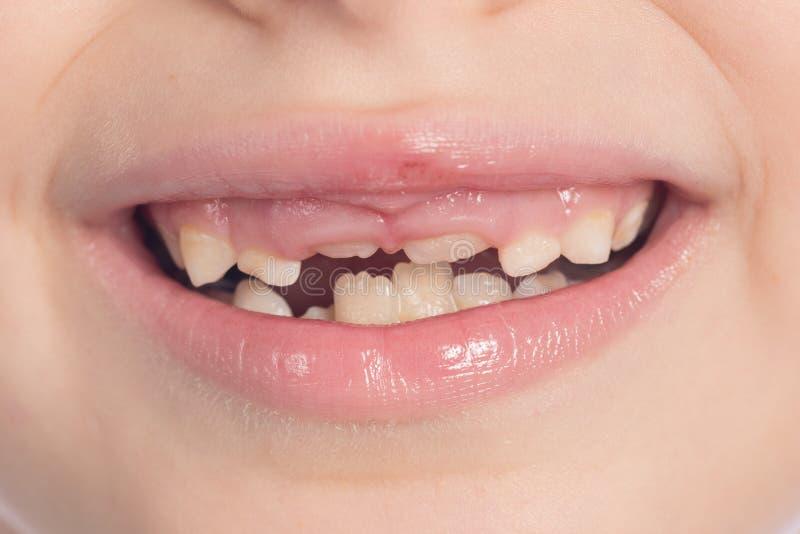 改变的牙 免版税库存图片