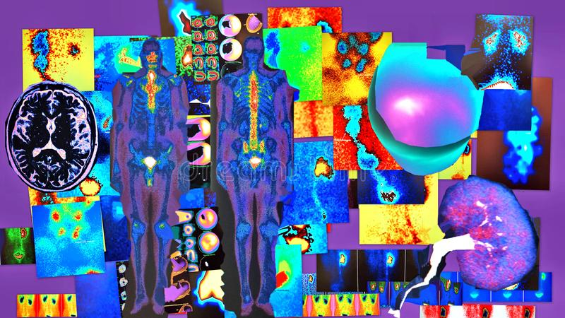 放射学诊断紫罗兰色色素 免版税库存图片