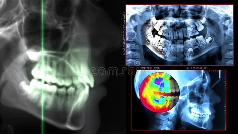 数字式牙齿扫描 库存照片
