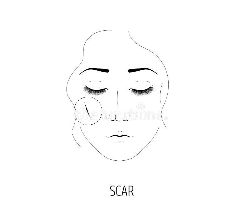 整容术伤痕撤除的激光做法  女孩的面孔 向量例证
