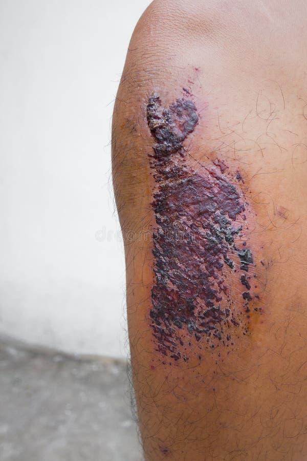 斑点病皮肤 库存图片