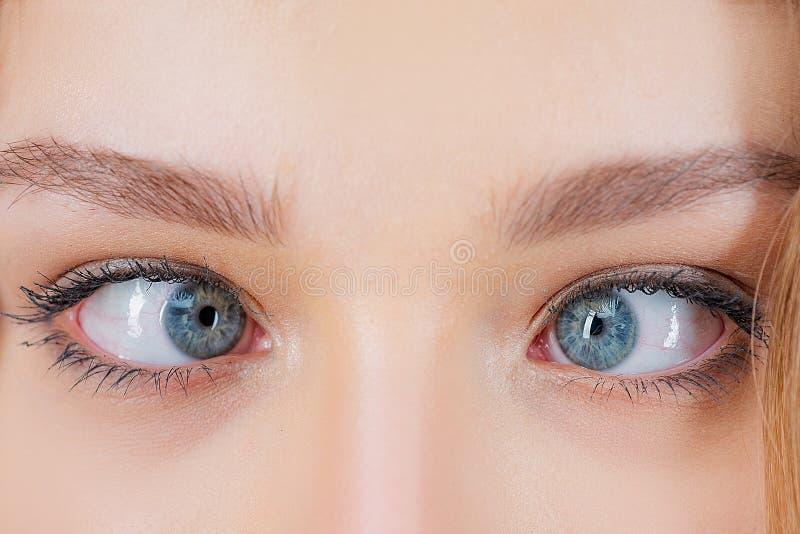 斜视眼睛手术 关闭与半眯着的眼睛的疯狂的女性眼睛 眼肌肉后退 眼睛外面的肌肉解剖学 免版税库存照片