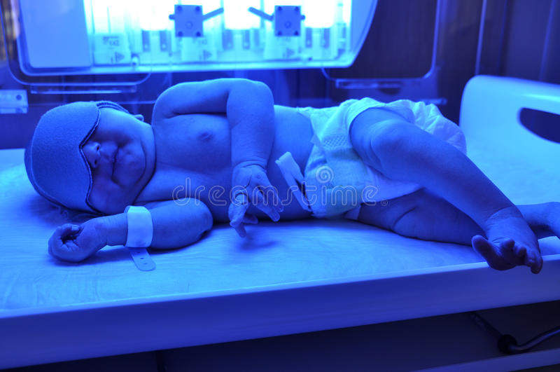新出生的黄疸 免版税库存图片