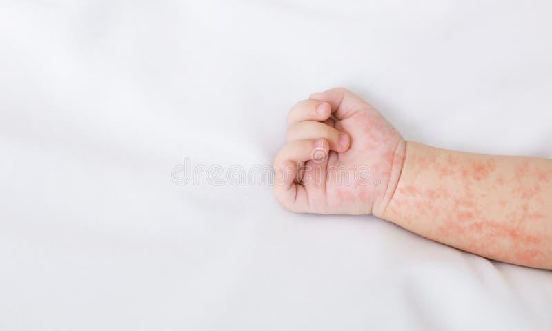 新生儿的手以在白色板料的麻疹疹 免版税图库摄影