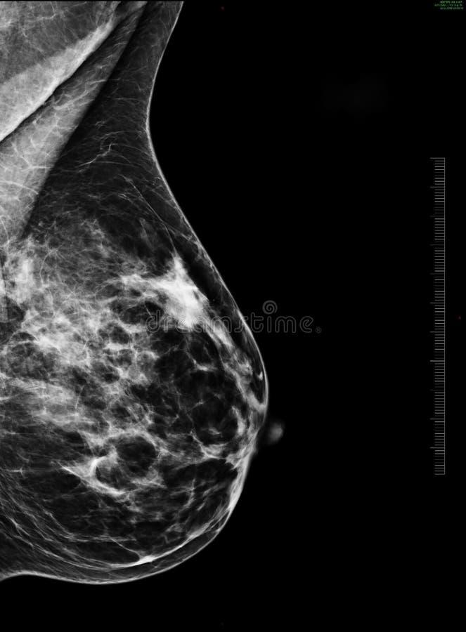 早期胸部肿瘤Ⅹ射线测定法 库存照片