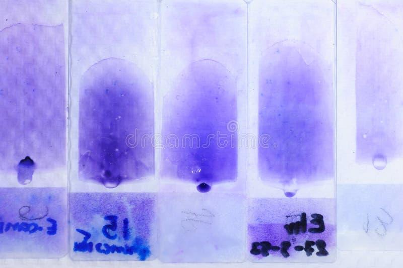 显微镜的血液测试 图库摄影
