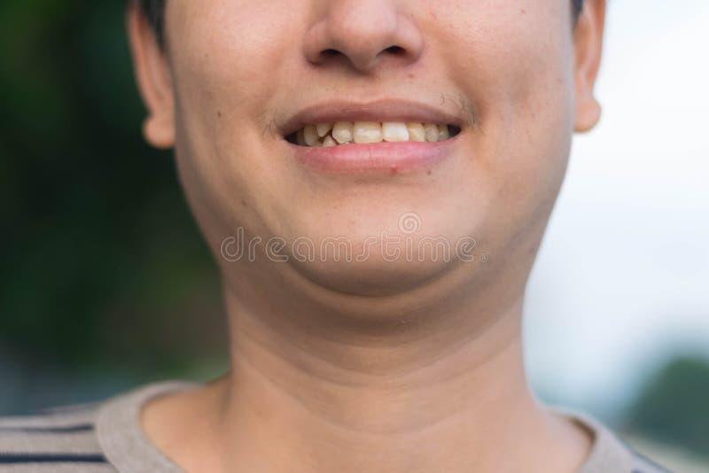 显示他牙微笑的人 免版税库存照片