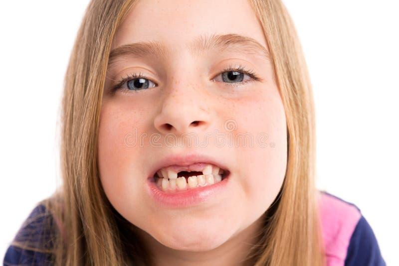 显示牙滑稽的画象的白肤金发的凹进的女孩 免版税库存照片