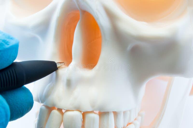 显示骨骼鼻子和在头骨的鼻腔的耐心骨头解剖学医生 为鼻整形术手术做准备,改正d 库存图片