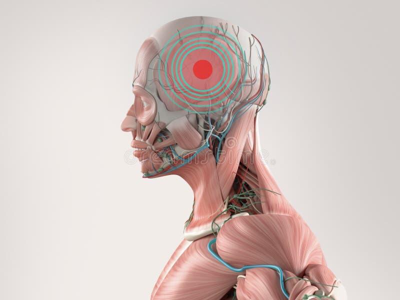 显示头疼的解剖学模型 红色斑点和同心圆在痛苦区域  库存例证