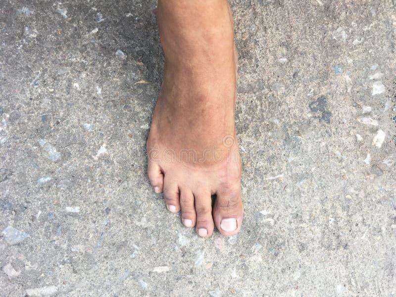 晒斑标记在赤脚的在takeing鞋子以后 免版税库存图片